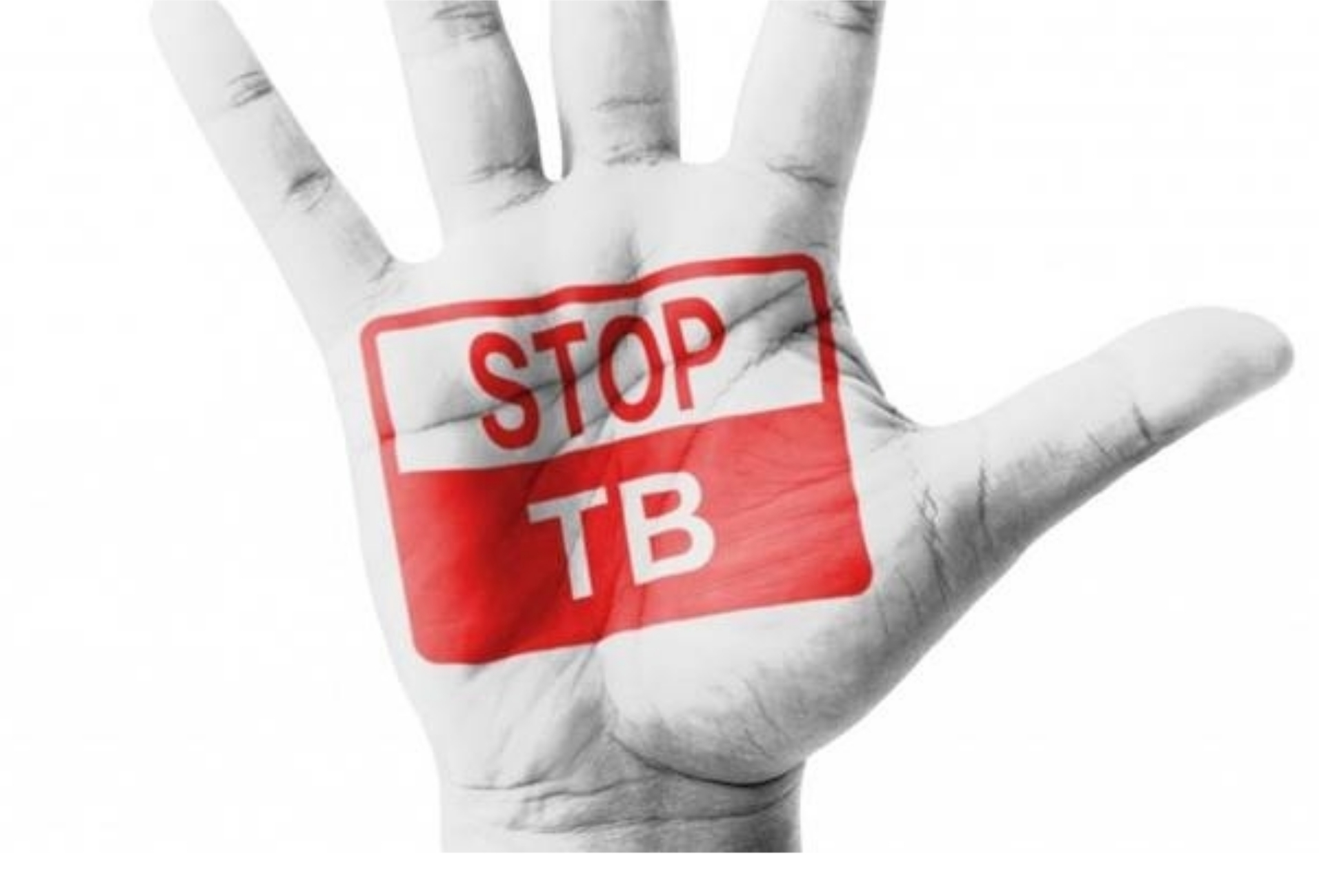 Assam media briefed on key issues on TB