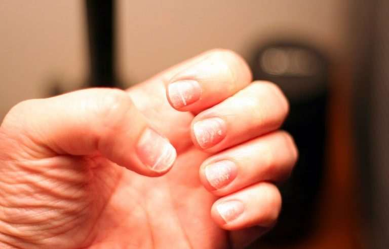 White Spots On The Fingernails