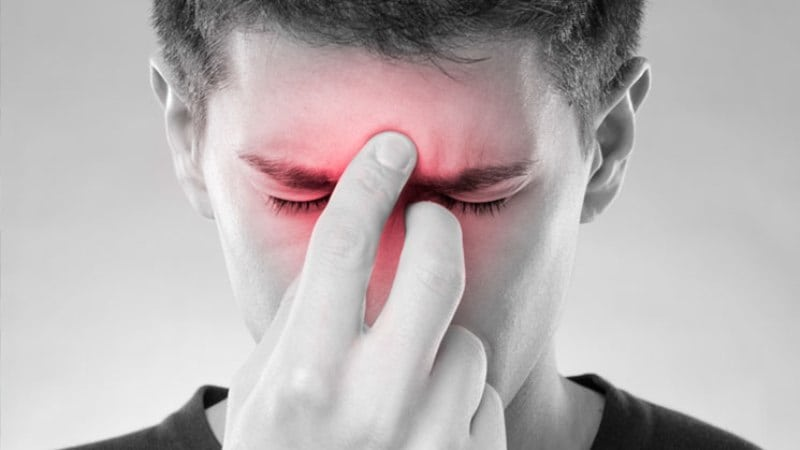 3 Causes of Sinusitis That Nobody Told You About