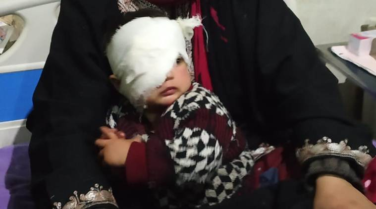 Kashmir: 20 Month Old Hit in her Eye by Pellet Guns; Doctor says Might Lose Eyesight of One Eye