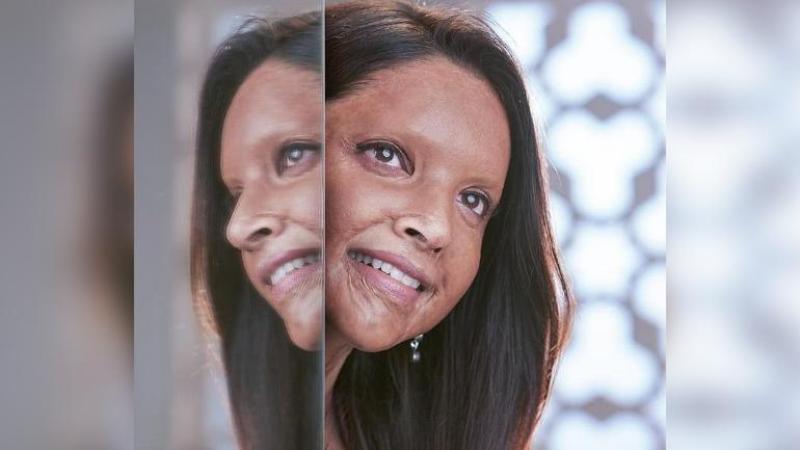 Chhapaak: Deepika Padukone Reveals First Look As Acid Attack Survivor In Upcoming Meghna Gulzar Film