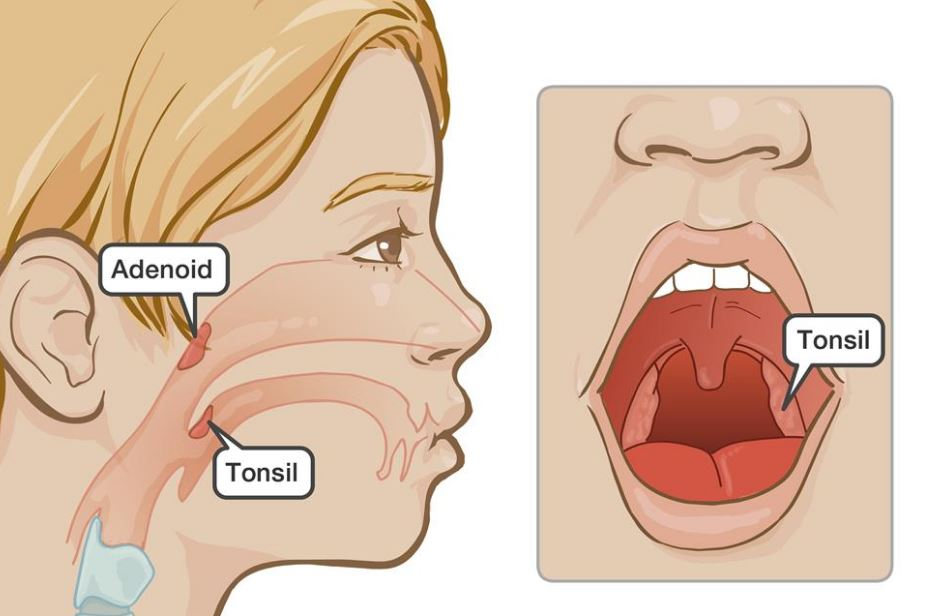 Tonsils and Adenoids: A Different Perspective