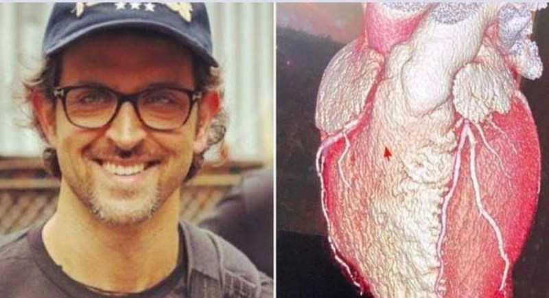 Bollywood Actor Hrithik Roshan shares the shape of his heart