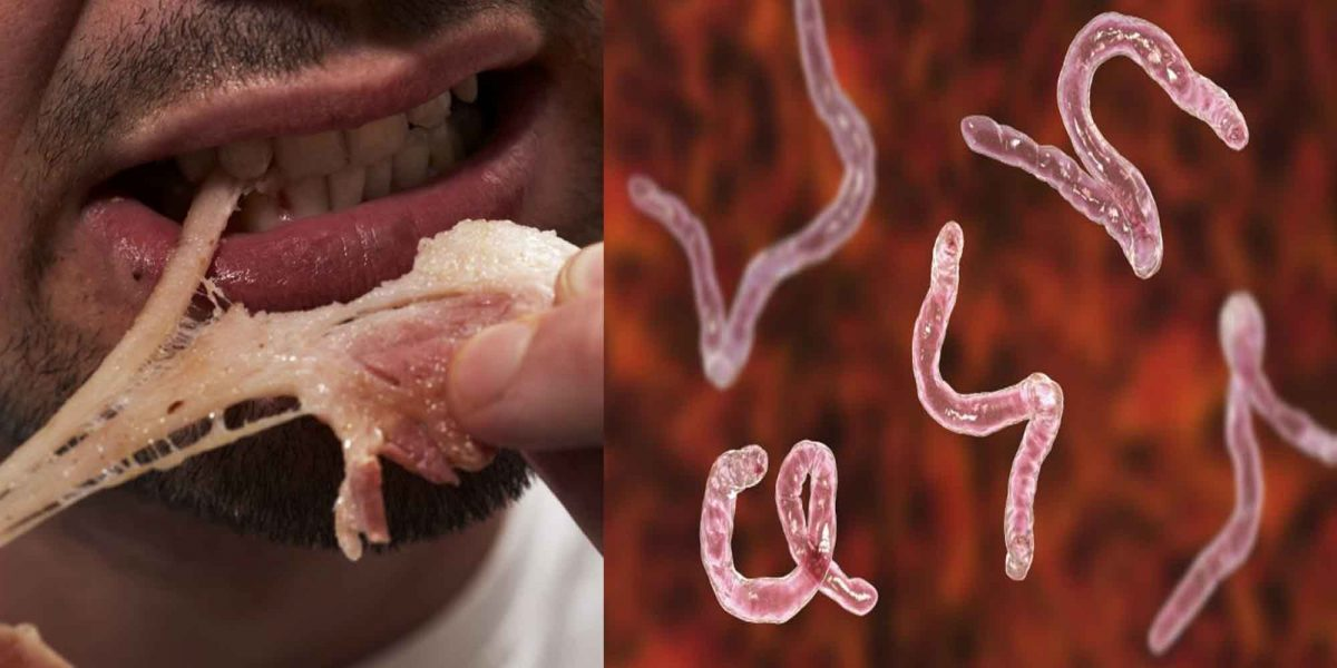 Man's Brain, Chest Riddled with over 700 Worms after Eating Undercooked Pork