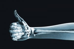Importance of Bone Health
