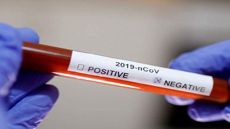 Morigaon DC-SP test negative for COVID-19